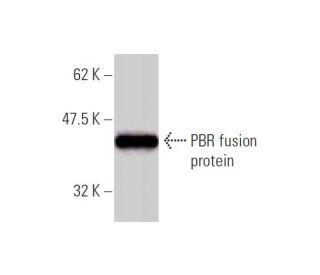 PBR Antibody (3D8-B2) | SCBT - Santa Cruz Biotechnology
