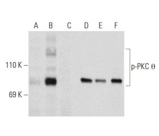 Western blot analysis of PKC theta phosphorylation in untreated (A,C),...