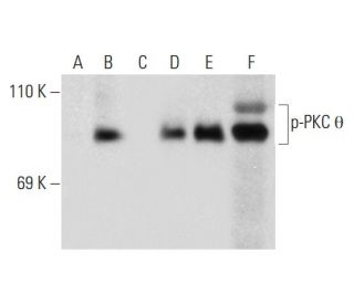 Western blot analysis of PKC theta phosphorylation in untreated (A,D),...