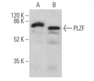 PLZF (D-9): sc-28319 HRP. Direct western blot analysis of PLZF...