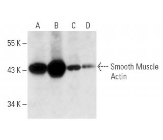 Smooth Muscle Actin (B4): sc-53142. Western blot analysis of Smooth...