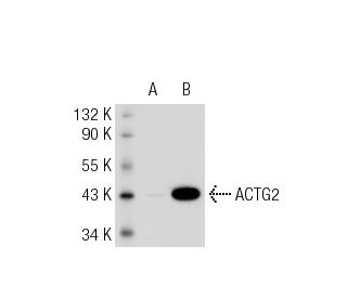 Smooth Muscle Actin (B4): sc-53142. Western blot analysis of ACTG2...