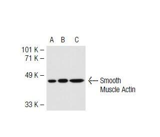 Smooth Muscle Actin (B4): sc-53142. Western blot analysis of gamma-Actin...