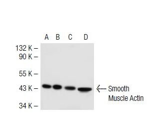 Smooth Muscle Actin (B4): sc-53142. Western blot analysis of ACTG1...