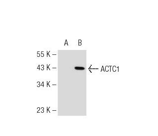 Smooth Muscle Actin (B4): sc-53142. Western blot analysis of ACTC1...