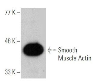 Smooth Muscle Actin (B4) HRP: sc-53142 HRP. Direct western blot analysis...