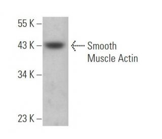 Smooth Muscle Actin (B4): sc-53142. Western blot analysis of Smooth Muscle...