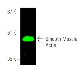 Smooth Muscle Actin (B4): sc-53142. Near-infrared western blot analysis of...