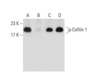 Sodium Orthovanadate: sc-3540. Western blot analysis of Cofilin 1 phosphorylation...