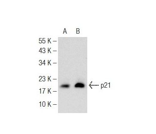 Sodium Phenylbutyrate: sc-200652. Western blot analysis of p21 expression in...