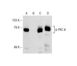 Western Blotting Luminol Reagent: sc-2048. Western blot analysis of PKC...