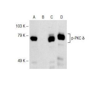 Western Blotting Luminol Reagent: sc-2048. Western blot analysis of PKC...